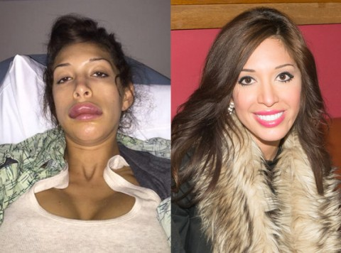 Farrah Abraham's Botched Lip Injections Magically Fixed?
